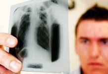 Как передается туберкулез